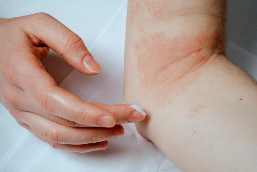 comment soigner eczema pied