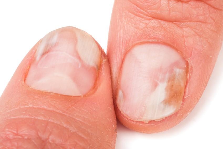Mycose Des Ongles Prévenir Et Traiter L Onychomycose Conseils Santé