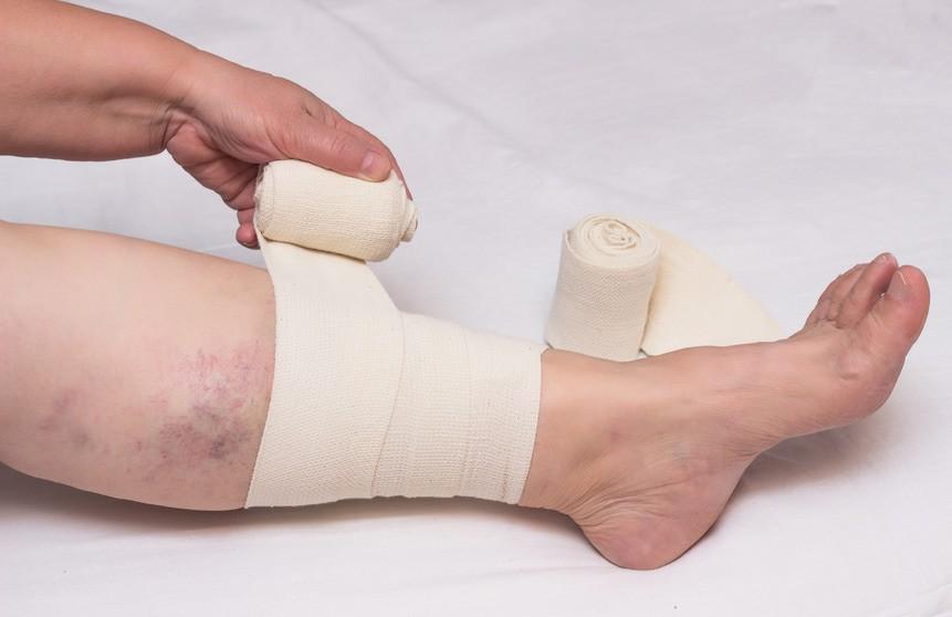 Comment soigner un ulcère de jambe ? - Conseils santé