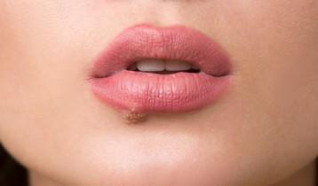 Bouton de fièvre: comment s'en débarrasser?
