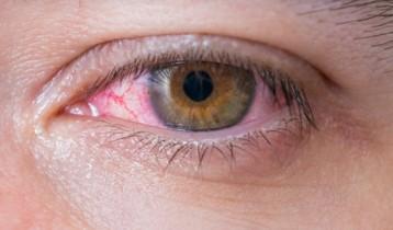 Que faire en cas de conjonctivite allergique ?