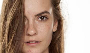 Problèmes de peau : lutter contre les imperfections