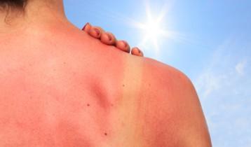 Comment prévenir les coups de soleil ?