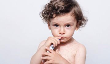 Rougeole : symptômes, prévention et traitement